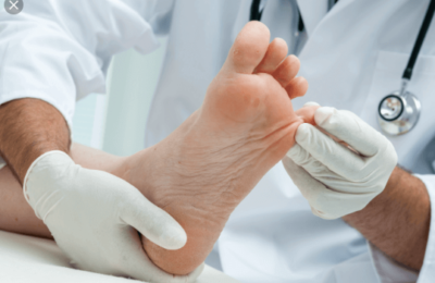 Home Remedies for Athletes Feet